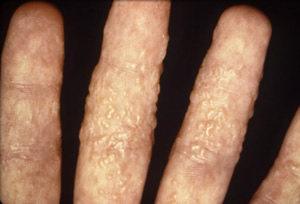 A photograph of a severe ringworm infection